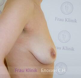 Подтяжка груди 12