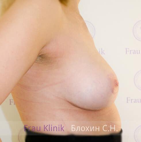 Подтяжка груди 13