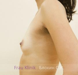 Увеличение груди 94