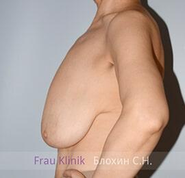 Уменьшение груди 13
