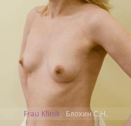 Увеличение груди 132