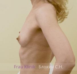 Увеличение груди 112