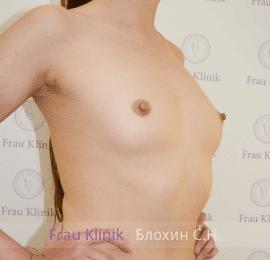 Увеличение груди 32