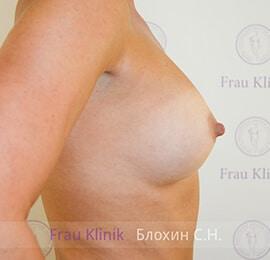 Повторная маммопластика 20