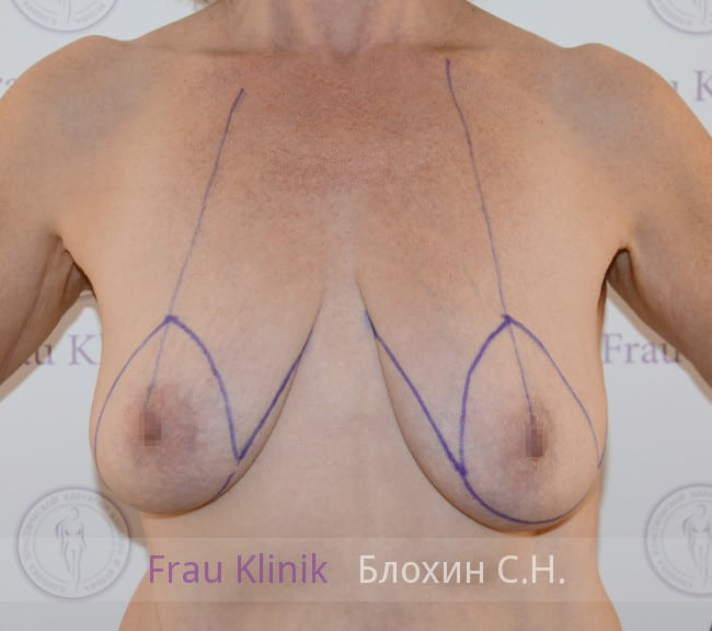 Подтяжка груди 52