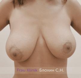 Уменьшение груди 45