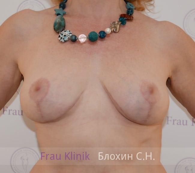 Подтяжка груди 53