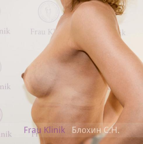 Увеличение груди 37