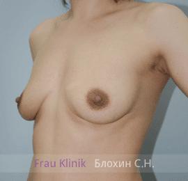 Увеличение груди 124