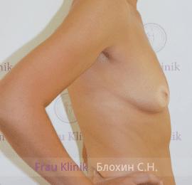 Увеличение груди 152