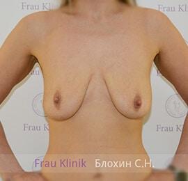 Подтяжка груди 16