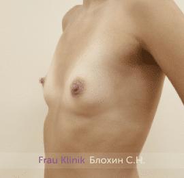 Увеличение груди 170