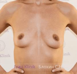 Увеличение груди 40