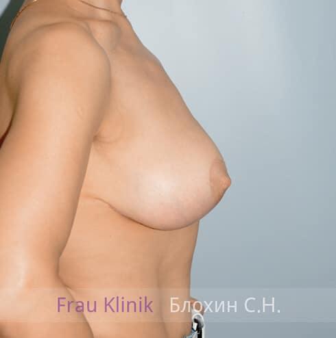 Уменьшение груди 22