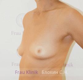 Увеличение груди 128