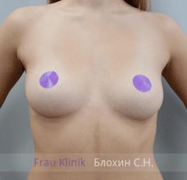 Увеличение груди 140