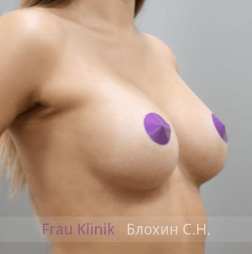 Увеличение груди 143