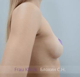 Увеличение груди 144