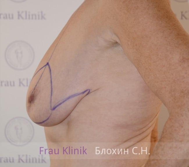 Подтяжка груди 56