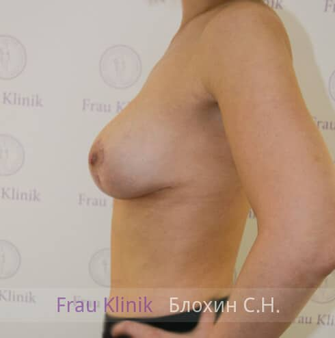 Подтяжка груди 15