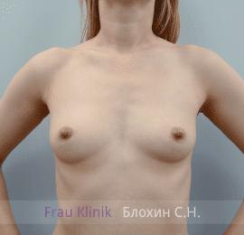 Увеличение груди 176