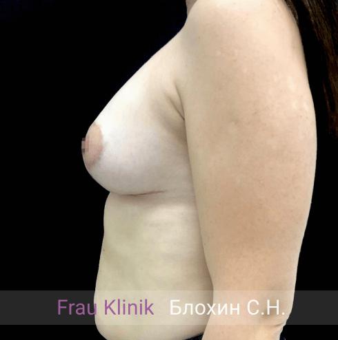 Подтяжка груди с увеличением 4