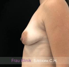 Подтяжка груди с увеличением 7