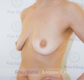 Подтяжка груди с увеличением 19