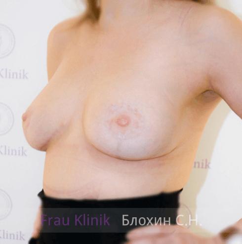 Подтяжка груди с увеличением 18
