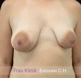 Подтяжка груди с увеличением 9