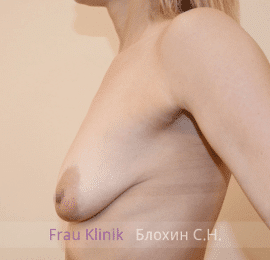 Подтяжка груди с увеличением 33