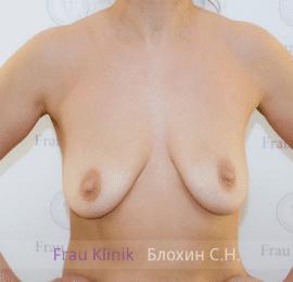 Подтяжка груди с увеличением 21