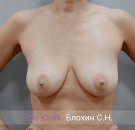 Подтяжка груди с увеличением 3