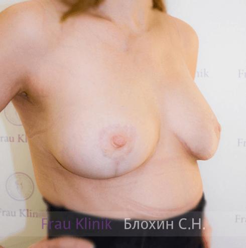 Подтяжка груди с увеличением 22