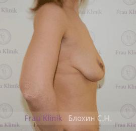 Подтяжка груди с увеличением 31