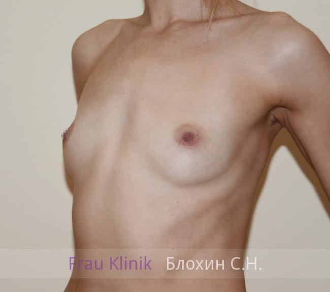 Эндоскопическое увеличение груди 17