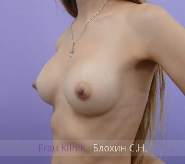 Эндоскопическое увеличение груди 4