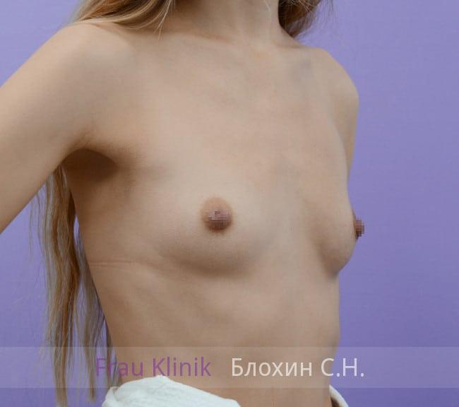 Эндоскопическое увеличение груди 7