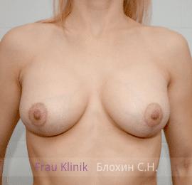 Коррекция асимметрии груди 38