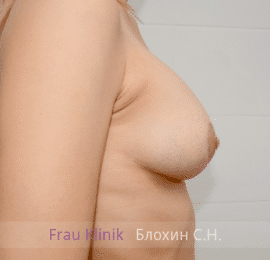 Коррекция асимметрии груди 40