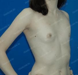 Коррекция асимметрии груди 17