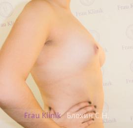 Коррекция асимметрии груди 7