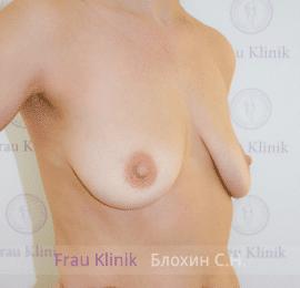 Коррекция ассиметрии груди 31
