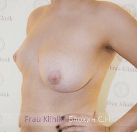 Коррекция асимметрии груди 9