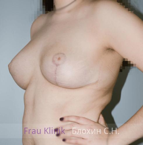Коррекция ассиметрии груди 10