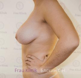 Коррекция асимметрии груди 11