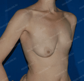 Коррекция ассиметрии груди 23