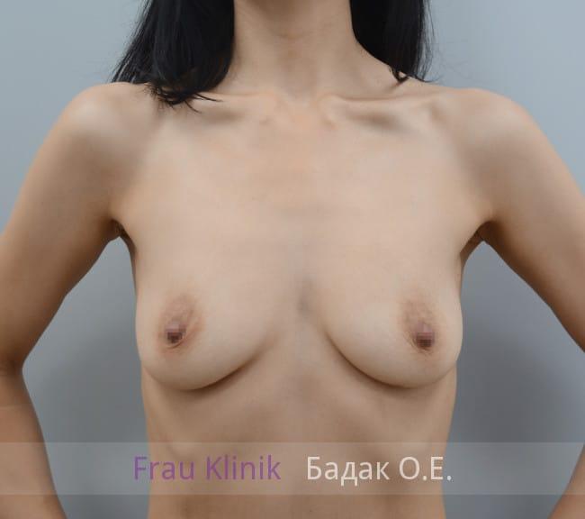 Двухплоскостное эндоскопическое увеличение груди 7