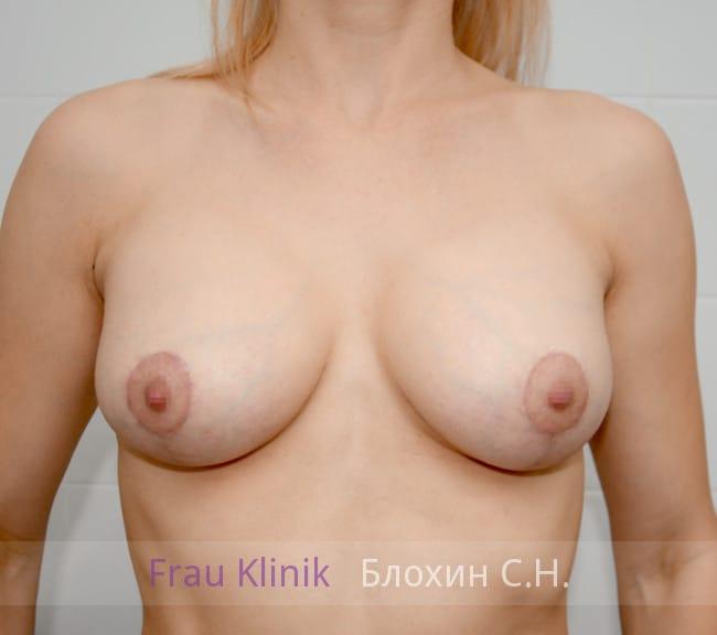 Пластика груди после родов 3