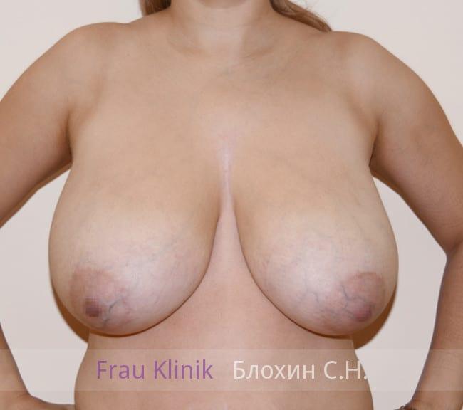 Маммопластика 16